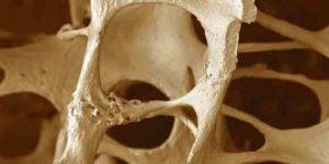 Osteoporosis- Avoidable or Inevitable?