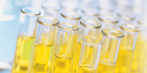 rows of urine test tubes