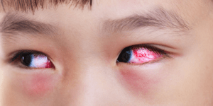 Naturopathic Approach to Pink Eye